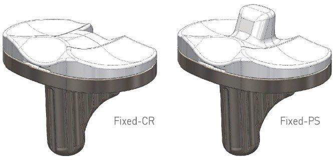 Corentec Lospa Knee System
