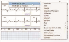 ENDO ECG Holter Monitoring EI.HM